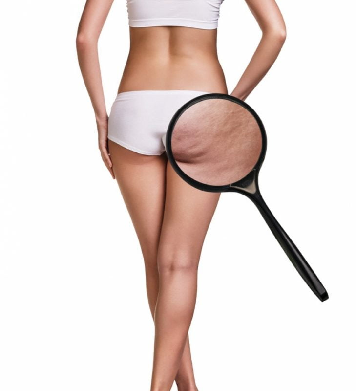 Woman lean body with magnifying glass showing cellulite in the butt region