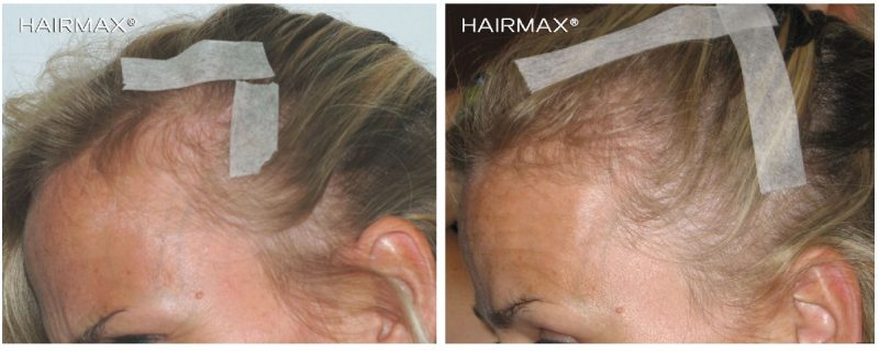 before_after_female_hairmax