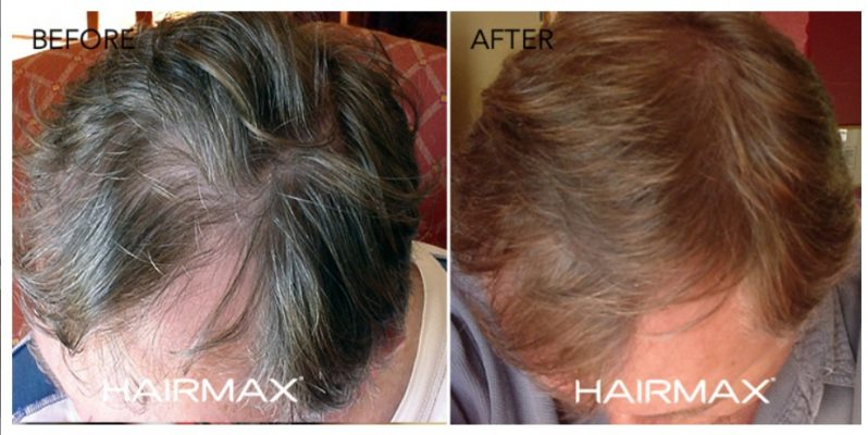 _before_after_male_hairmax